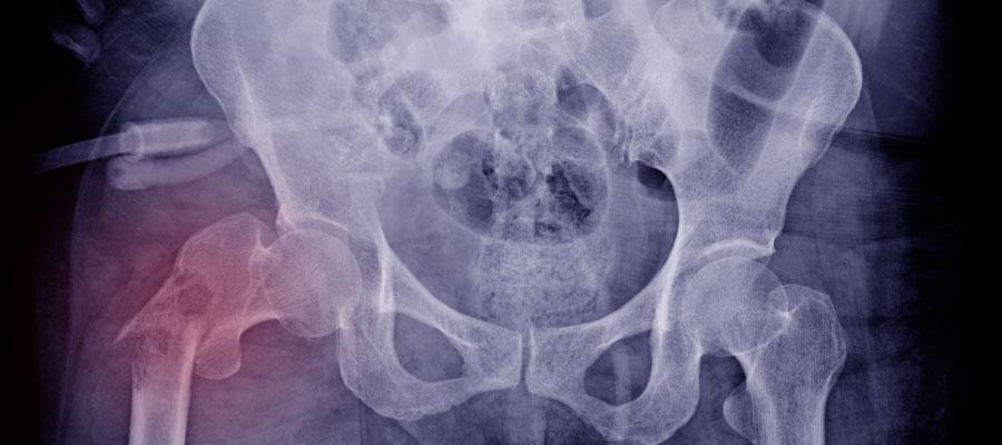 x ray of broken pelvis