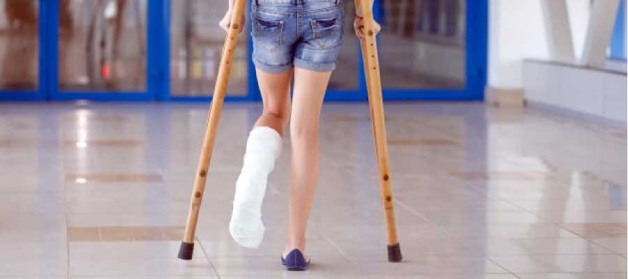 How to walk after a Broken Ankle?