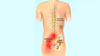 What to expect with spinal cord stimulator implant surgery post-op